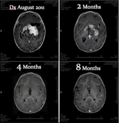 Aceite-Rick-Simpson-tumor-cerebral