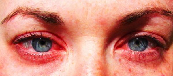 Allergy-01-600x265