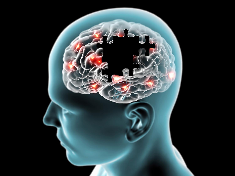 Un nuevo estudio alega que la agitación que produce el Alzheimer se puede tratar con THC.