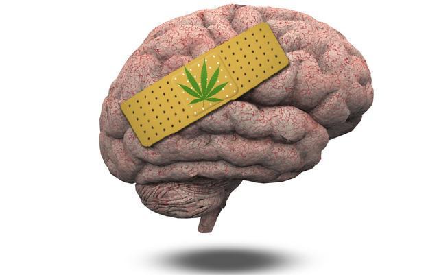 Un estudio ha descubierto que los cannabinoides protegen la barrera hematoencefálica después de tener una hemorragia intracerebral.