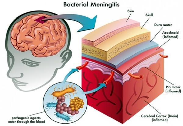 does-cannabis-treat-brain-inflammation-1-590x408