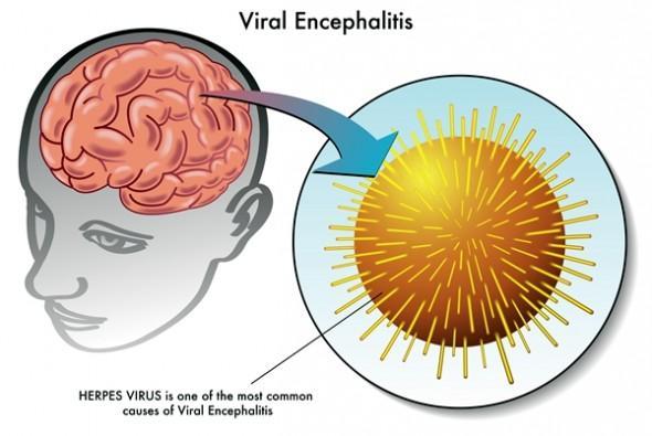 does-cannabis-treat-brain-inflammation-2-590x395